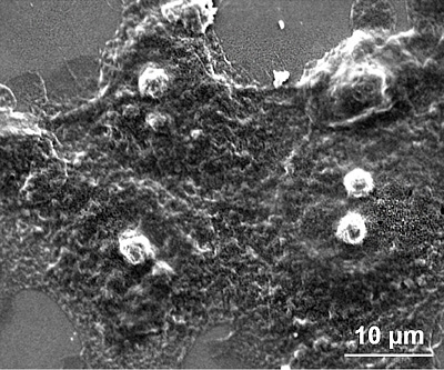 HT1080細胞在使用碳酸氫銨微脂體於42°C下治療後之SEM影像。治療後的細胞,其細胞膜會具有不連續及皺縮的特徵,並呈現出核溶解的現象,代表細胞走向壞死。