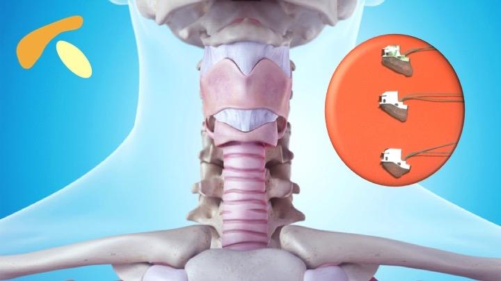 咽喉透視圖及VOIS
