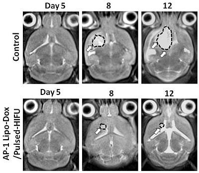 腦腫瘤MRI影像(超音波傳輸標靶藥物增強腦腫瘤生長之抑制效果)