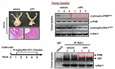 rVP1抑制小鼠原位子宮頸腫瘤生長