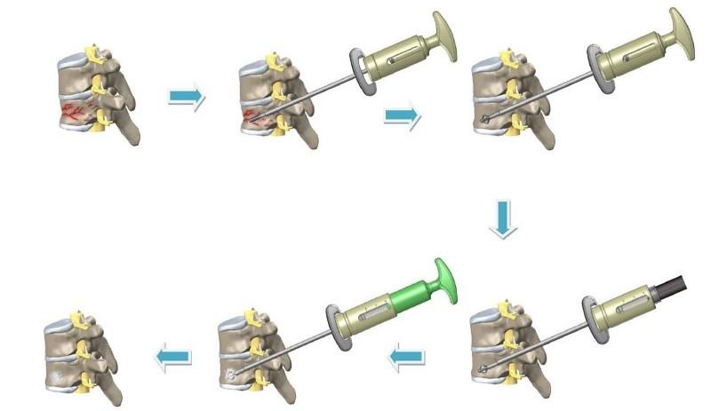 具支撐骨骼結構強度特性且可擴張之植入物手術流程。