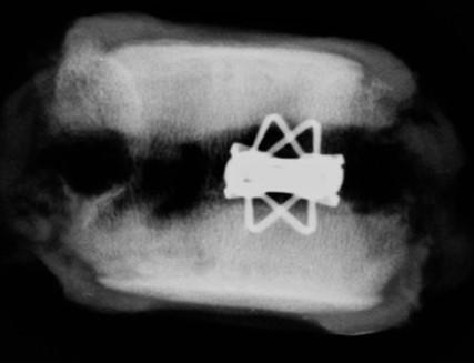 體外實驗時,植入物於豬脊椎椎體內擴張情形。