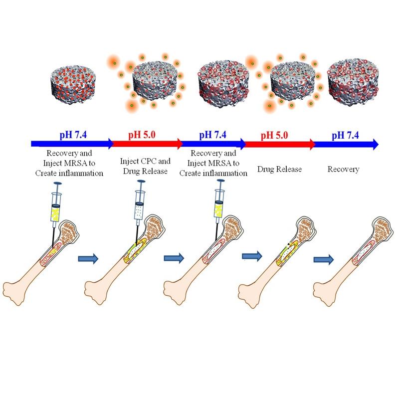 酸鹼控制釋放效果之新型骨水泥藥物釋放系統示意圖