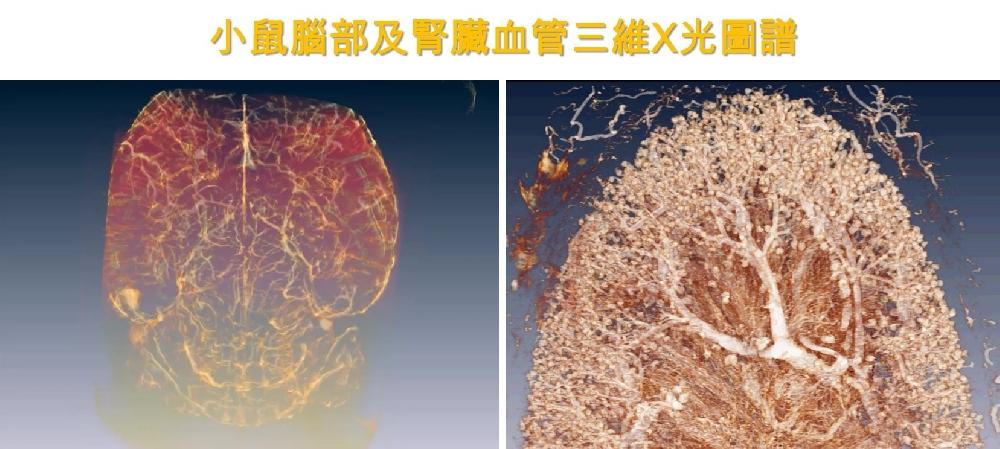 腦腎X光血管圖