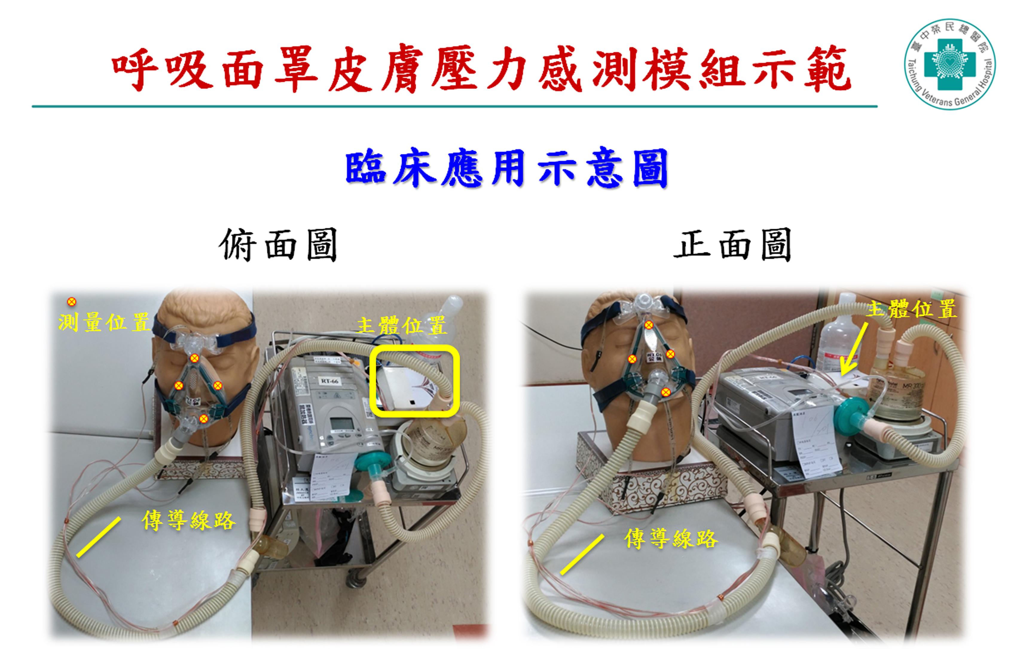 呼吸面罩皮膚壓力感測模組臨床應用示意圖