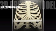 3D列印輔助矯正版設計之臨床使用