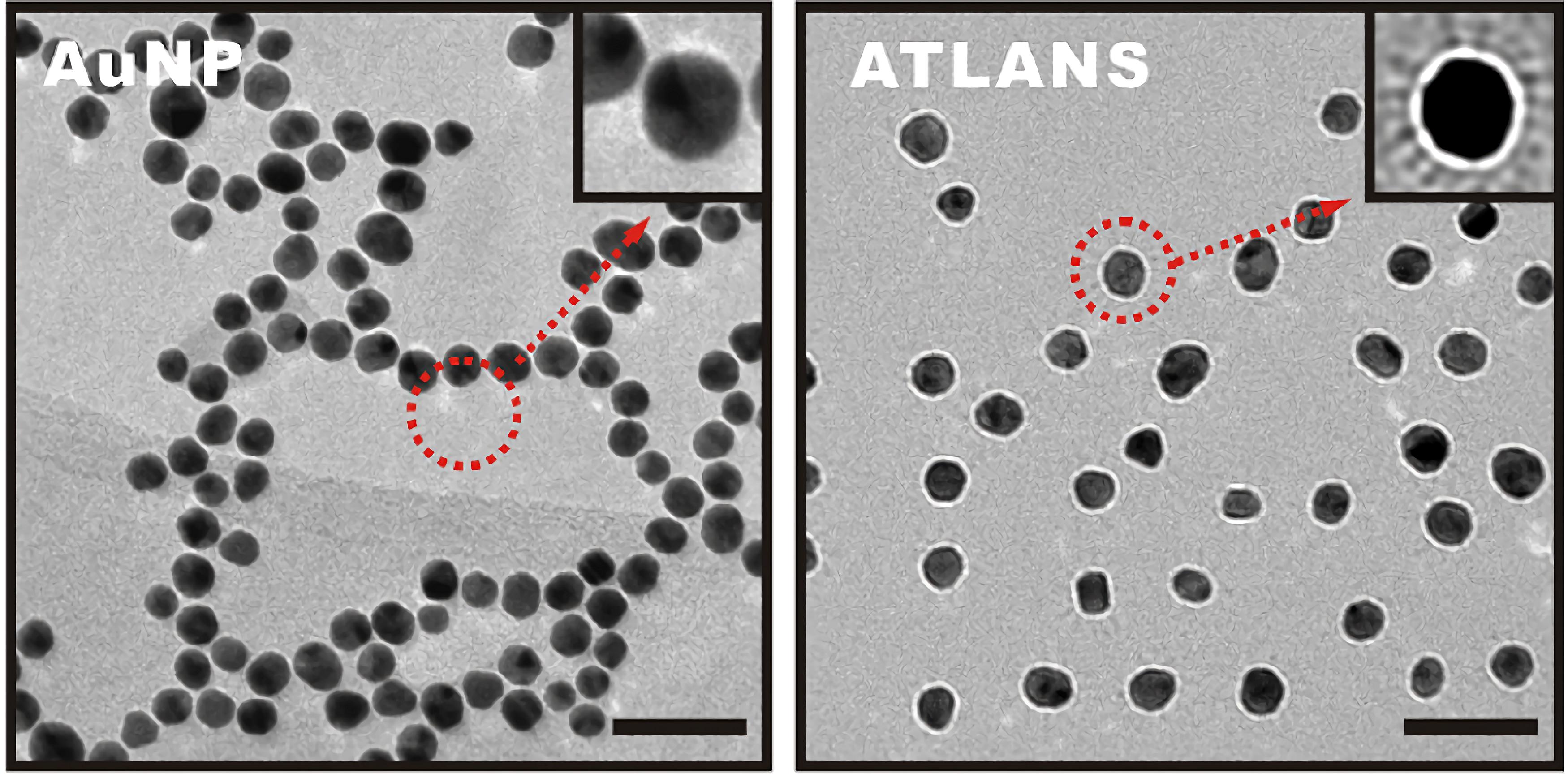 ATLANS實際組裝完成後的TEM結構圖。左圖為金奈米核心,右圖為組裝完成的ATLANS,可以看到有許多的辨識序列連結在金奈米表面
