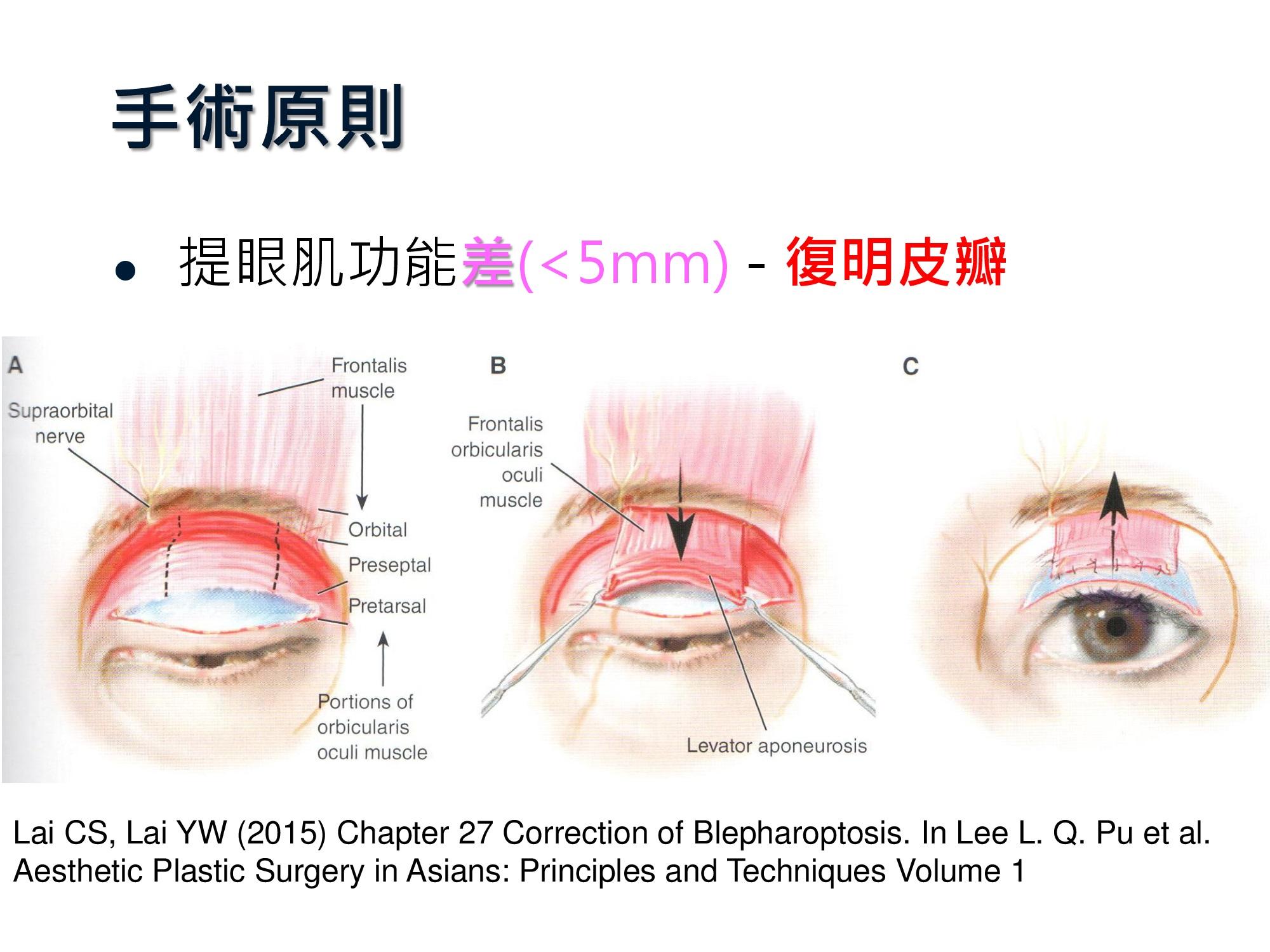 復明皮瓣的手術原則