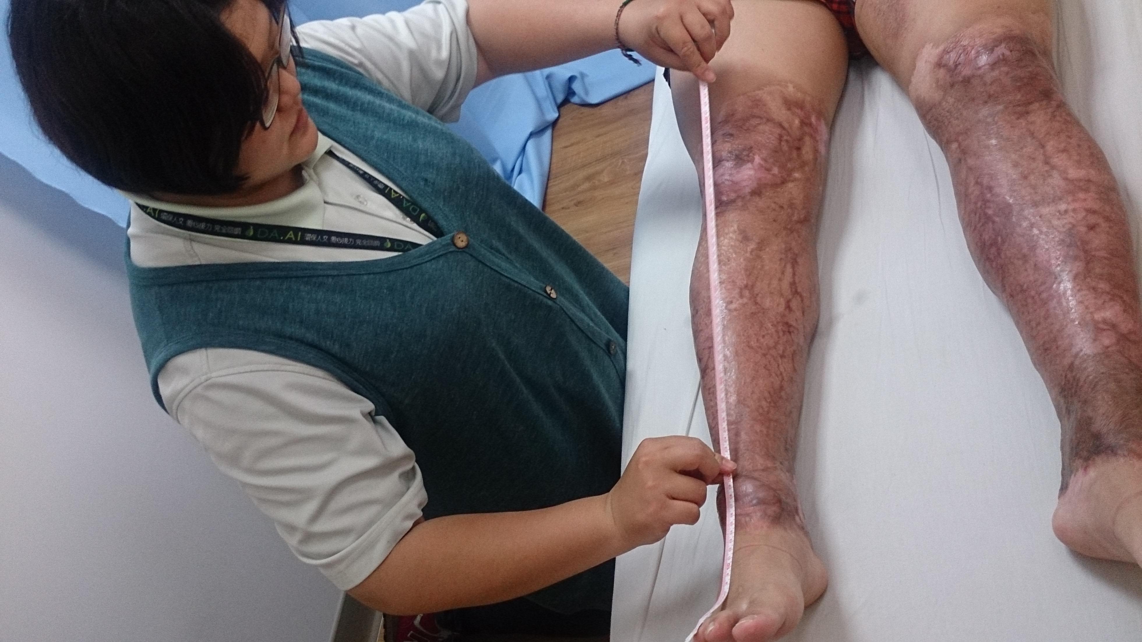 大愛感恩科技研發人員至陽光基金會量測八仙傷友紅度