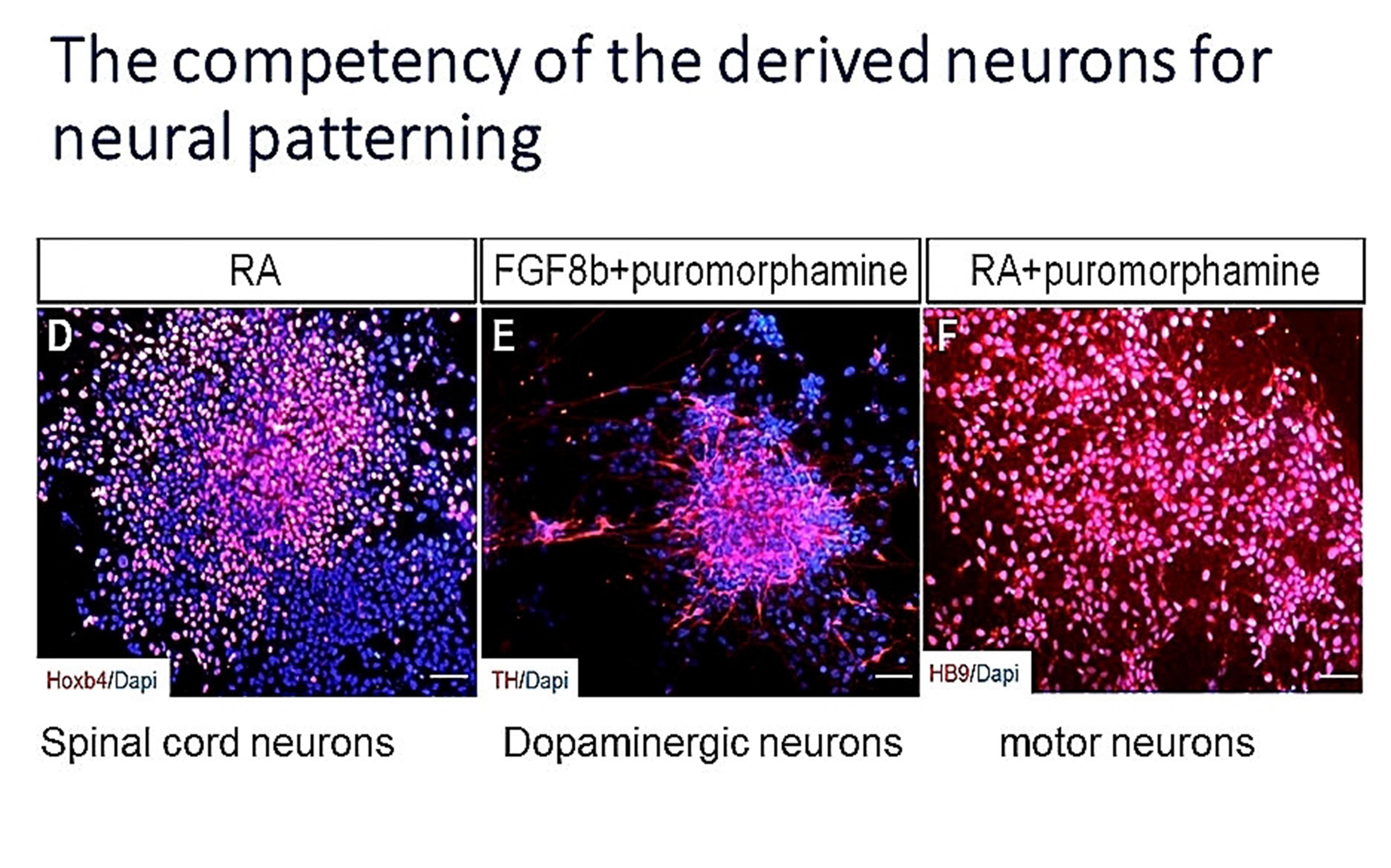 高效率之運動神經元與多巴胺神經元分化