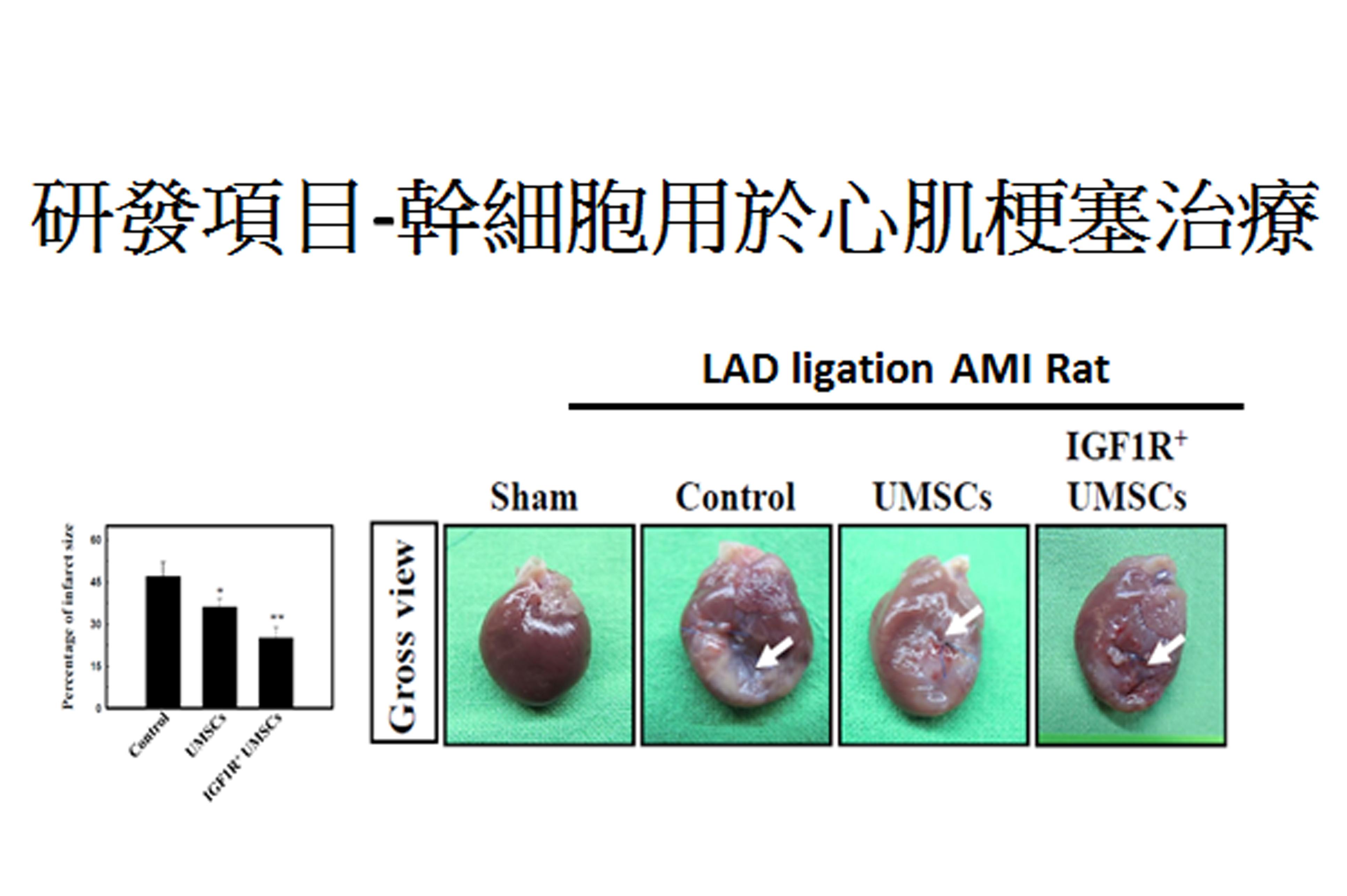 長聖生技所進行的臨床試驗之一:幹細胞用於心肌梗塞治療之應用