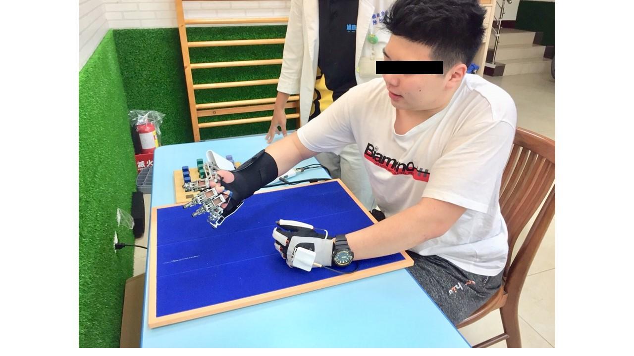 社區診所病人實際執行雙側模式訓練,健側手(左手)帶動患側手(右手)