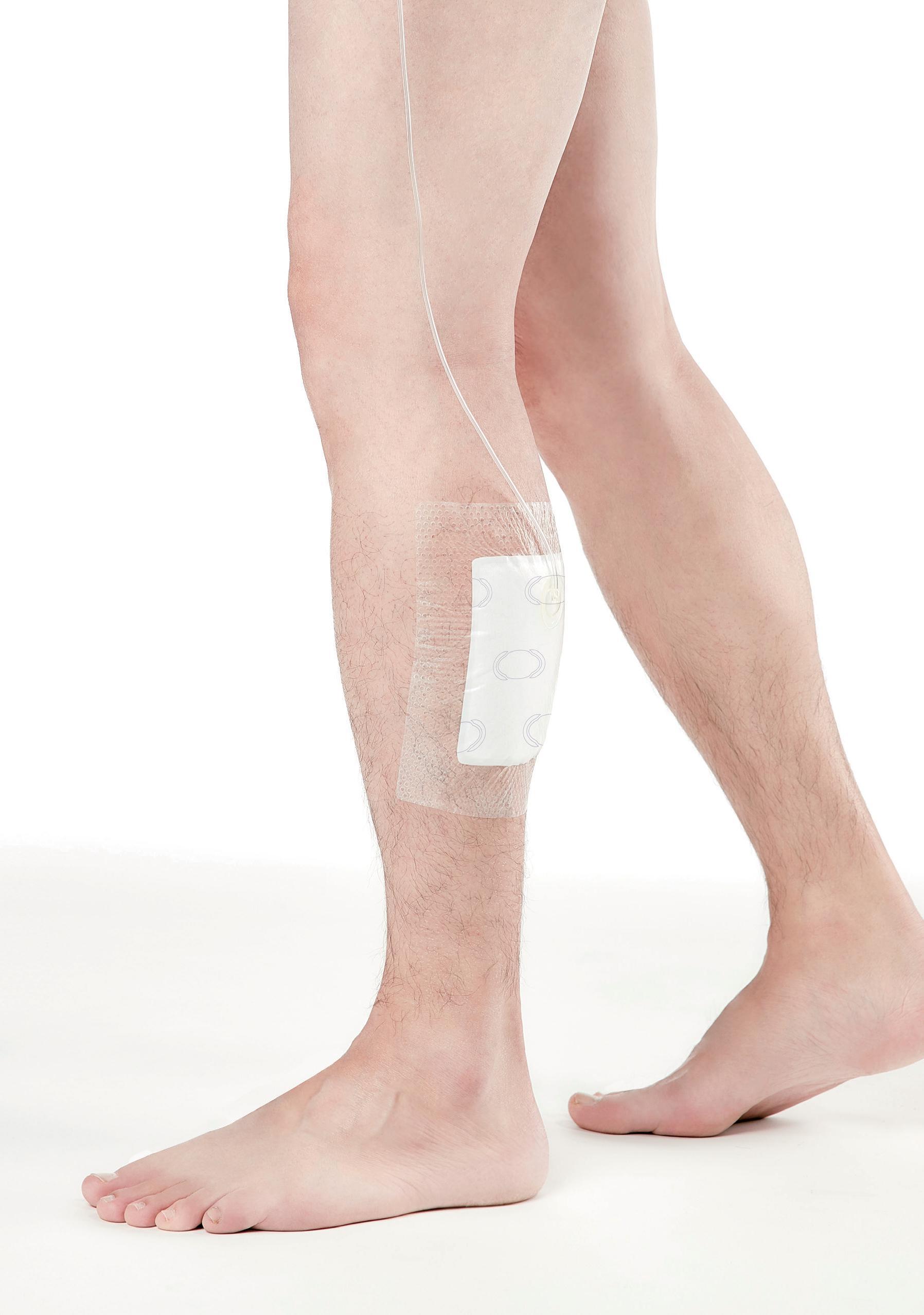 使用SIMO負壓傷口治療系統, 不需要攜帶集液瓶,不影響行動便利性