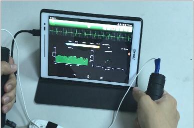 研發之一導程ECG量測儀