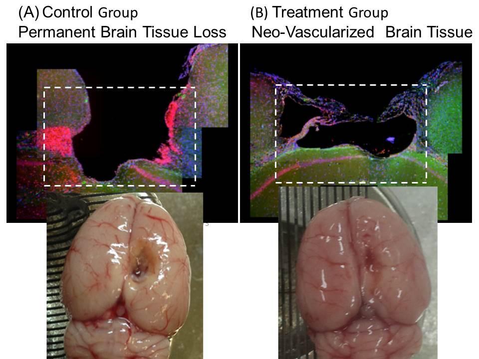 新生腦組織對照未接受層片治療的腦缺損處