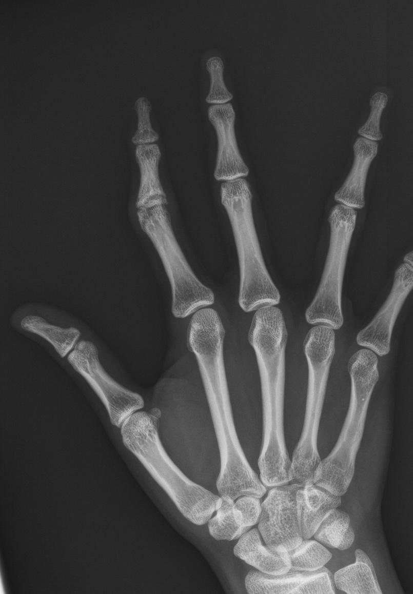 手術案例於手術前X光顯示右手食指近指間關節變形