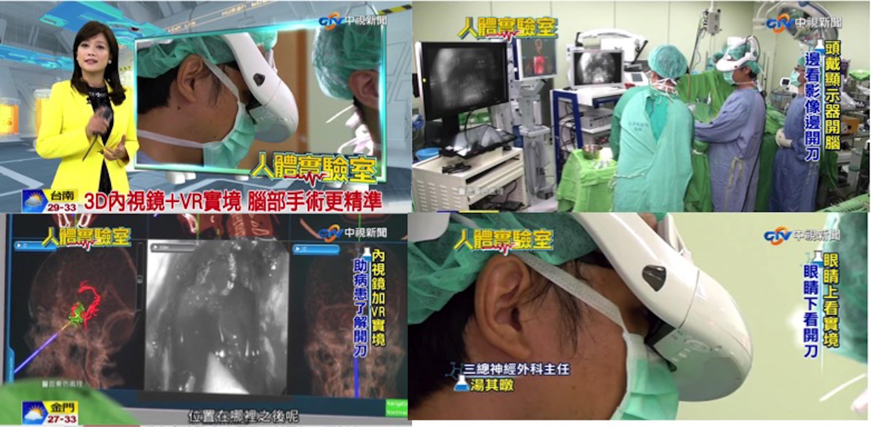國內專訪3D+內視鏡+V實境,腦部手術更精準,也可以協助病患瞭解手術