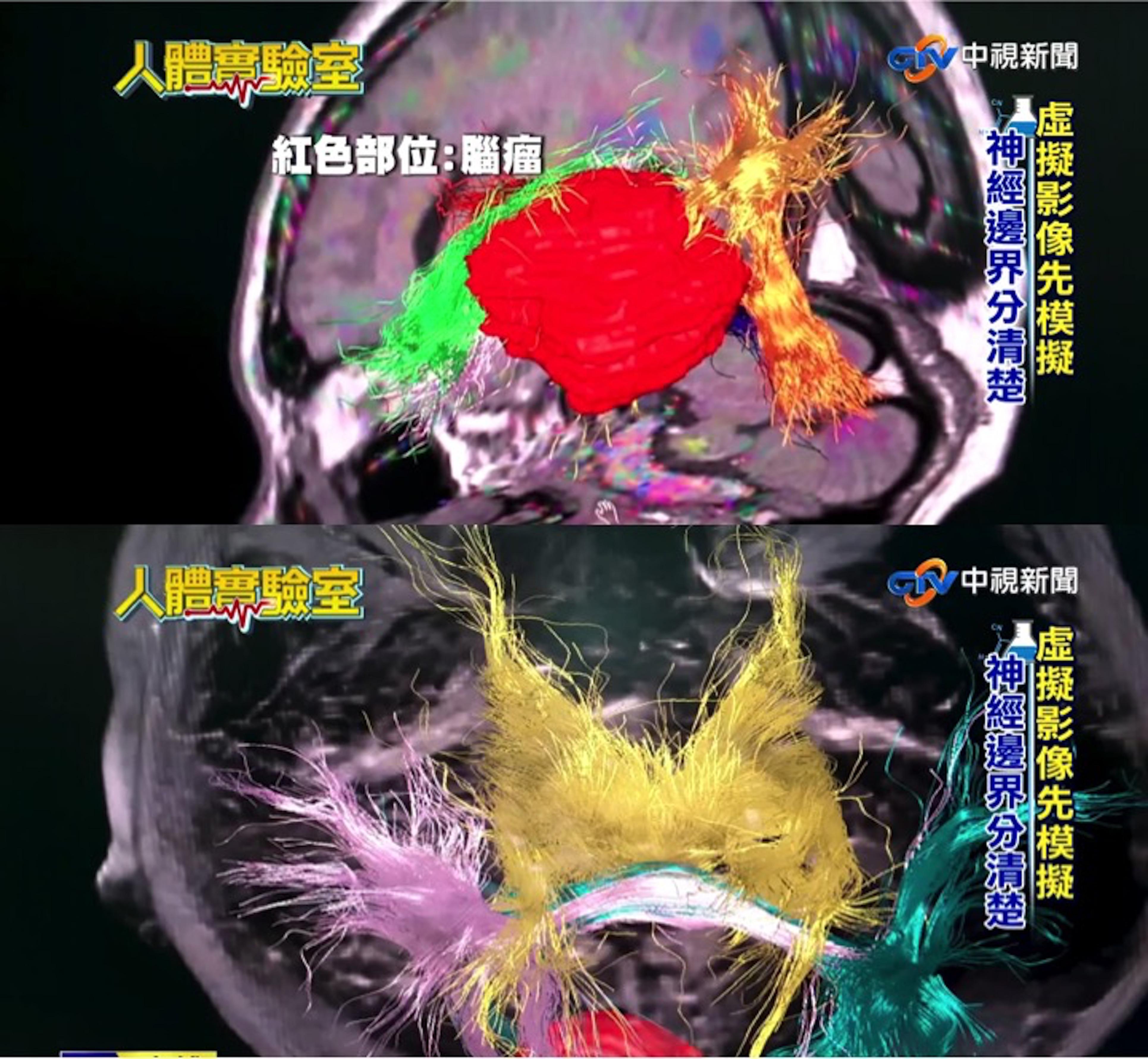 藉由電腦運算將虛擬神經模擬(其他顏色)與病兆(如紅色腫瘤)邊界做清楚分別