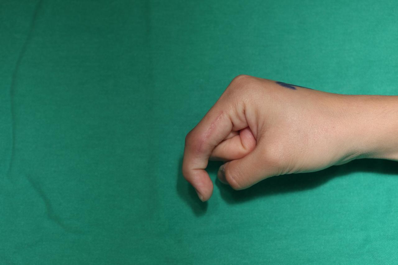 手術案例於手術前右手食指關節彎曲時,近指間關節無法彎曲