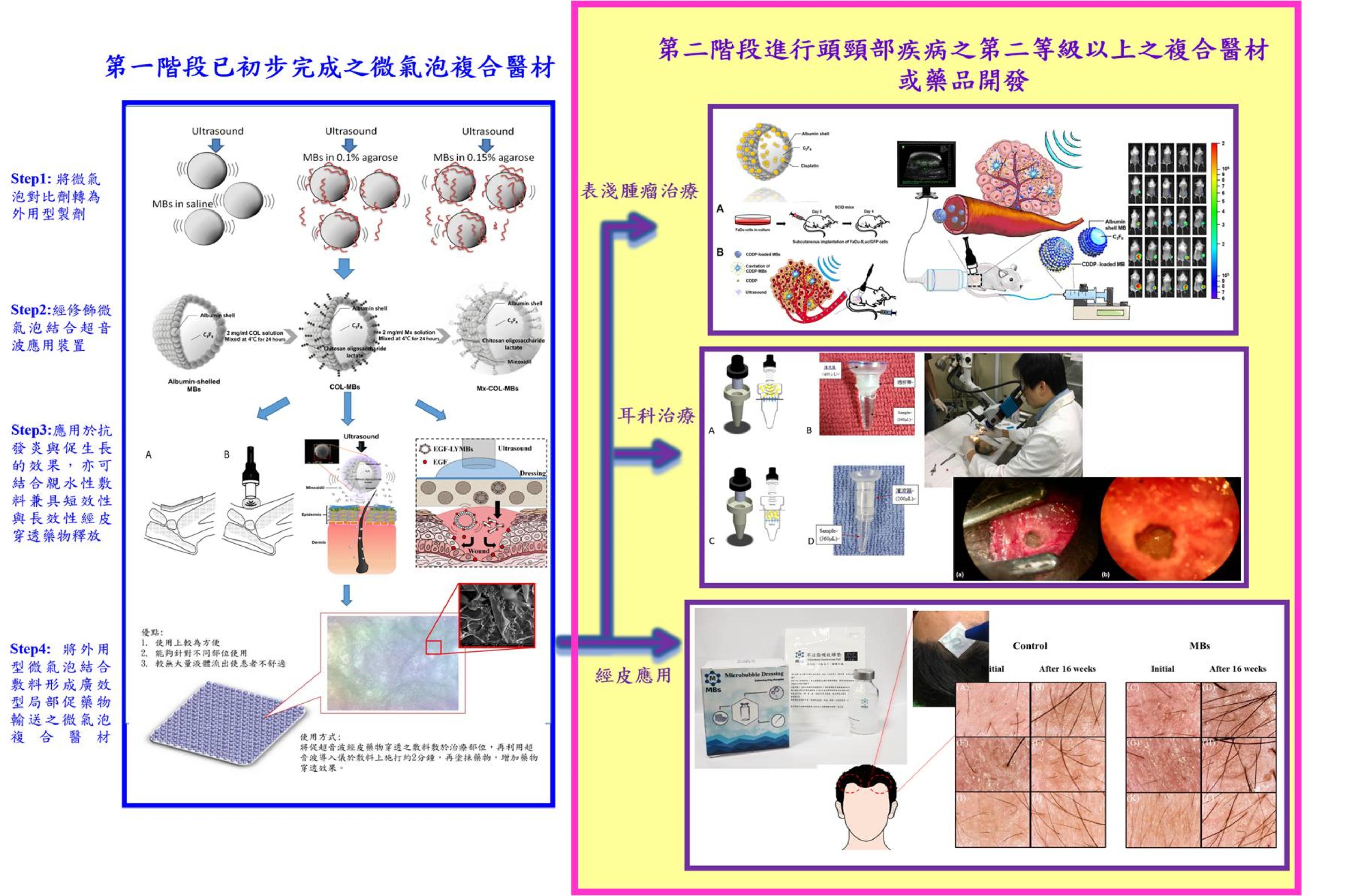 微氣泡複合醫材或藥品結合超音波於頭頸部疾病之發展