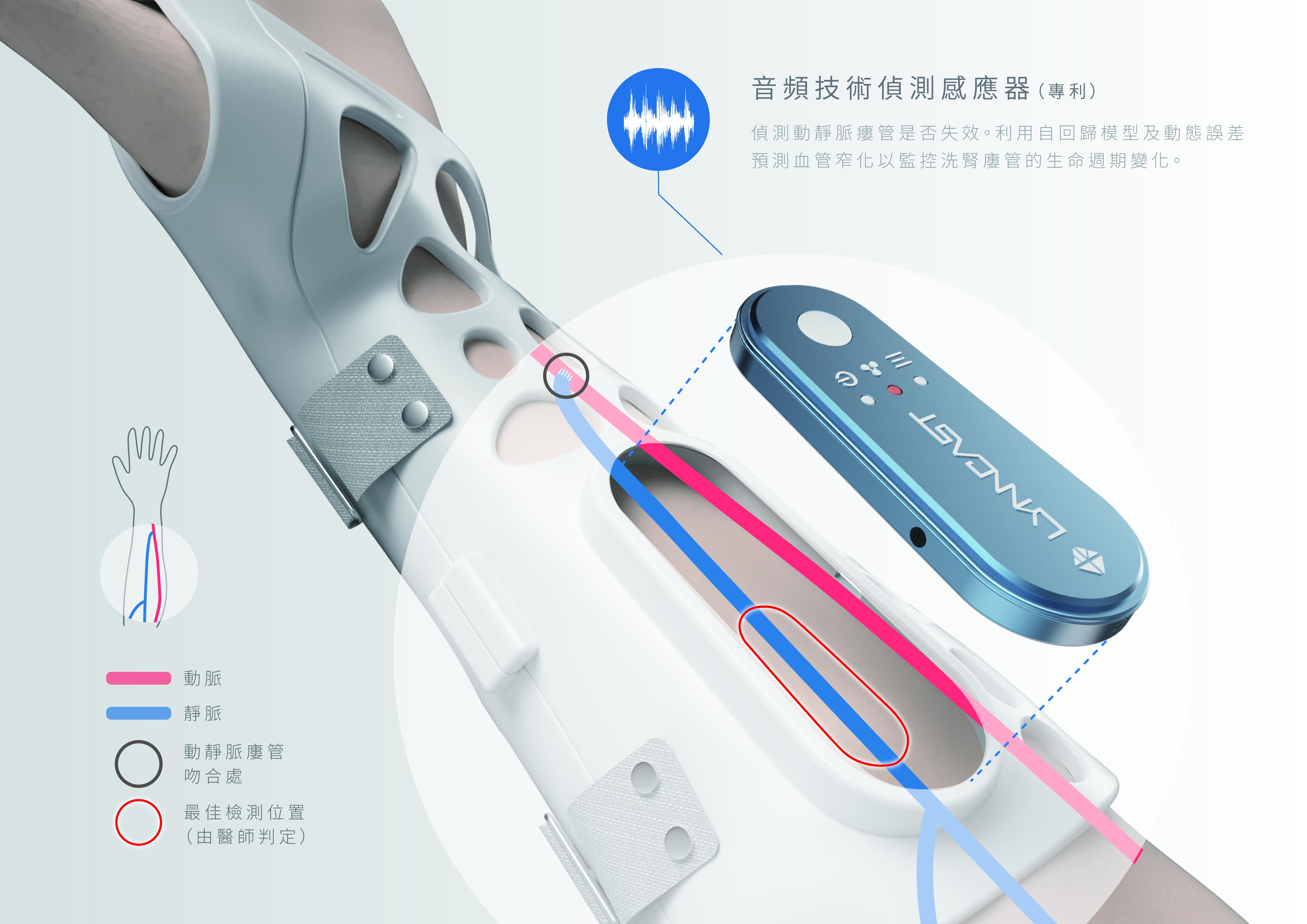 音技術偵測感應器
