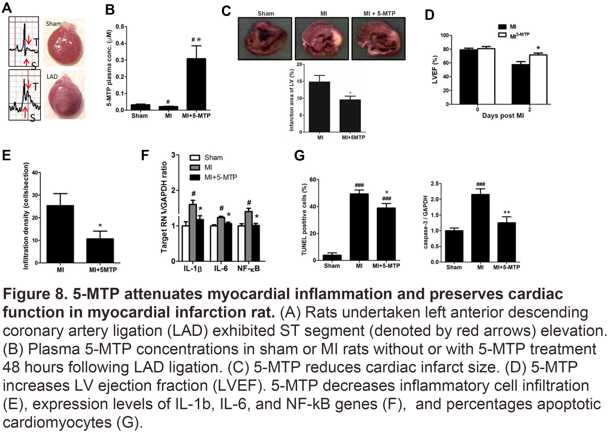 5-MTP attenuates myocardial inflammation and preserves cardiac function in myocardial infarction