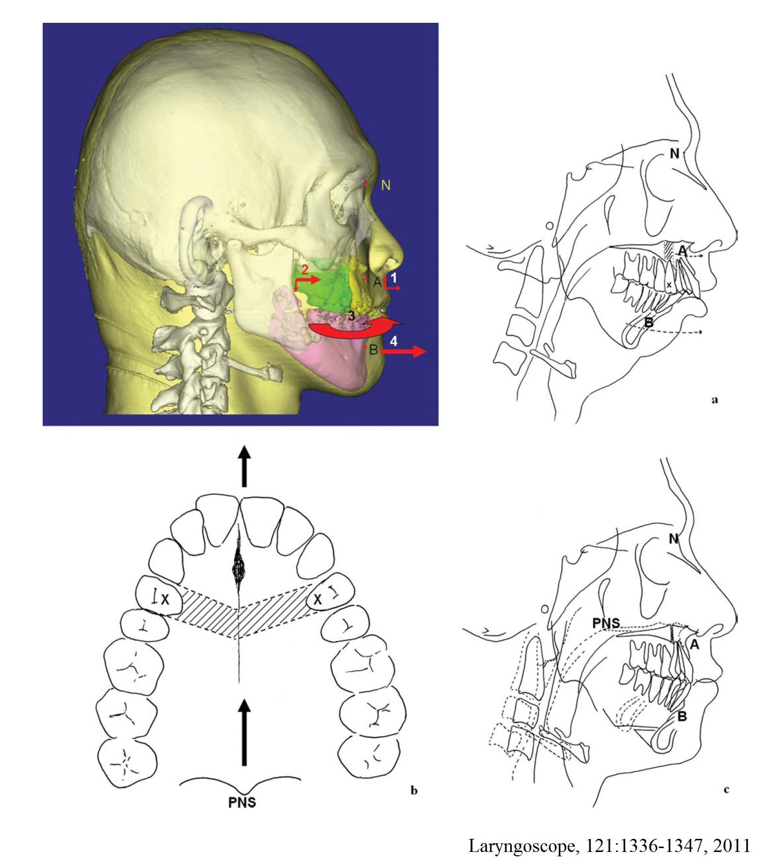 5.多片式上下顎旋轉前移手術設計