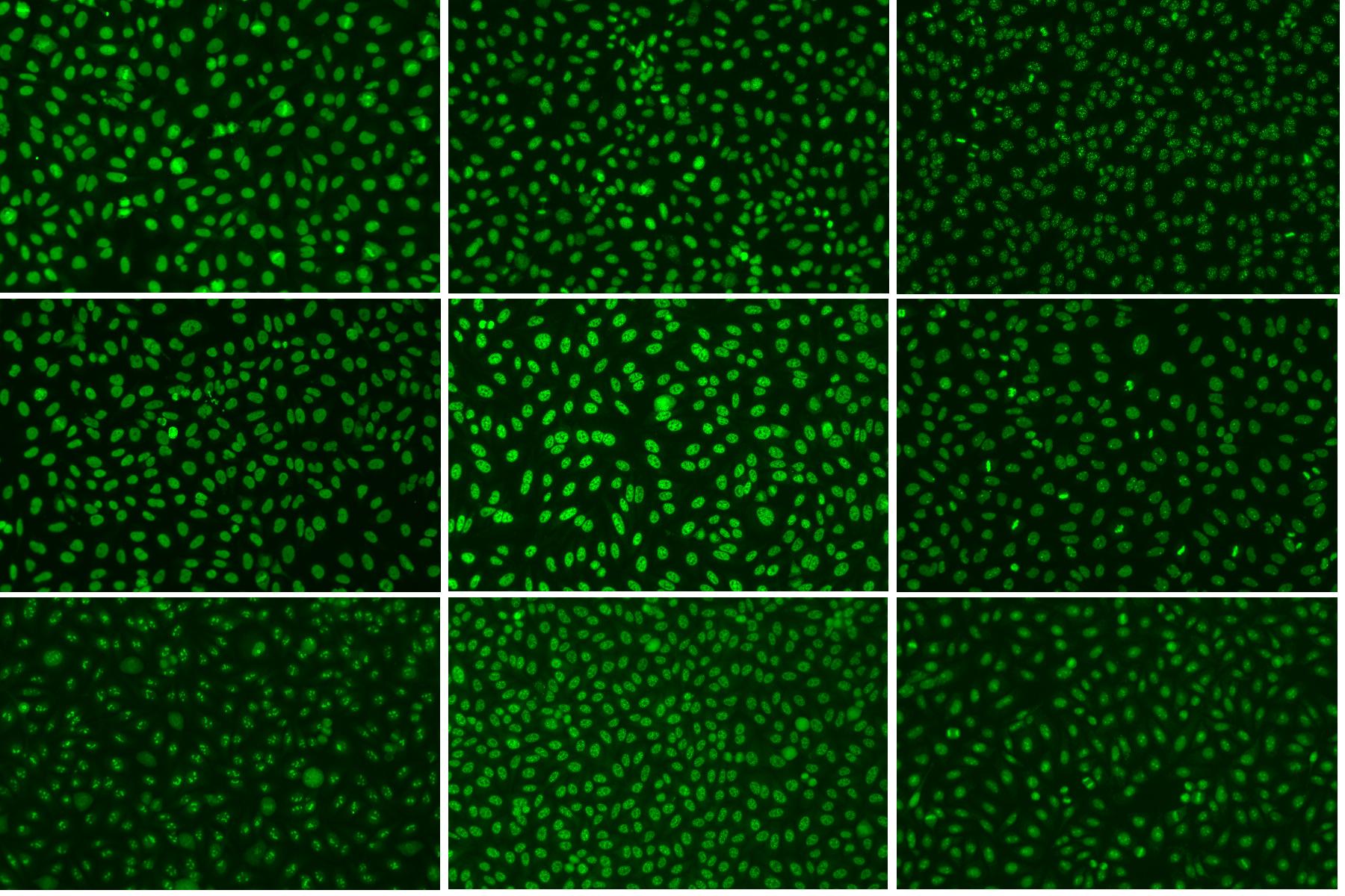 九種免疫螢光抗核抗體