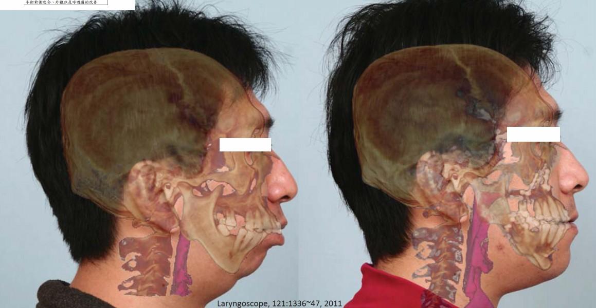 9.手術前後咬合、外觀以及呼吸道的改善