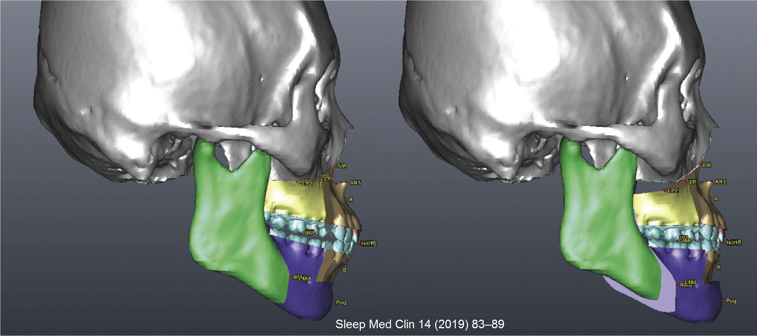 6.運用3D手術模擬協助手術進行