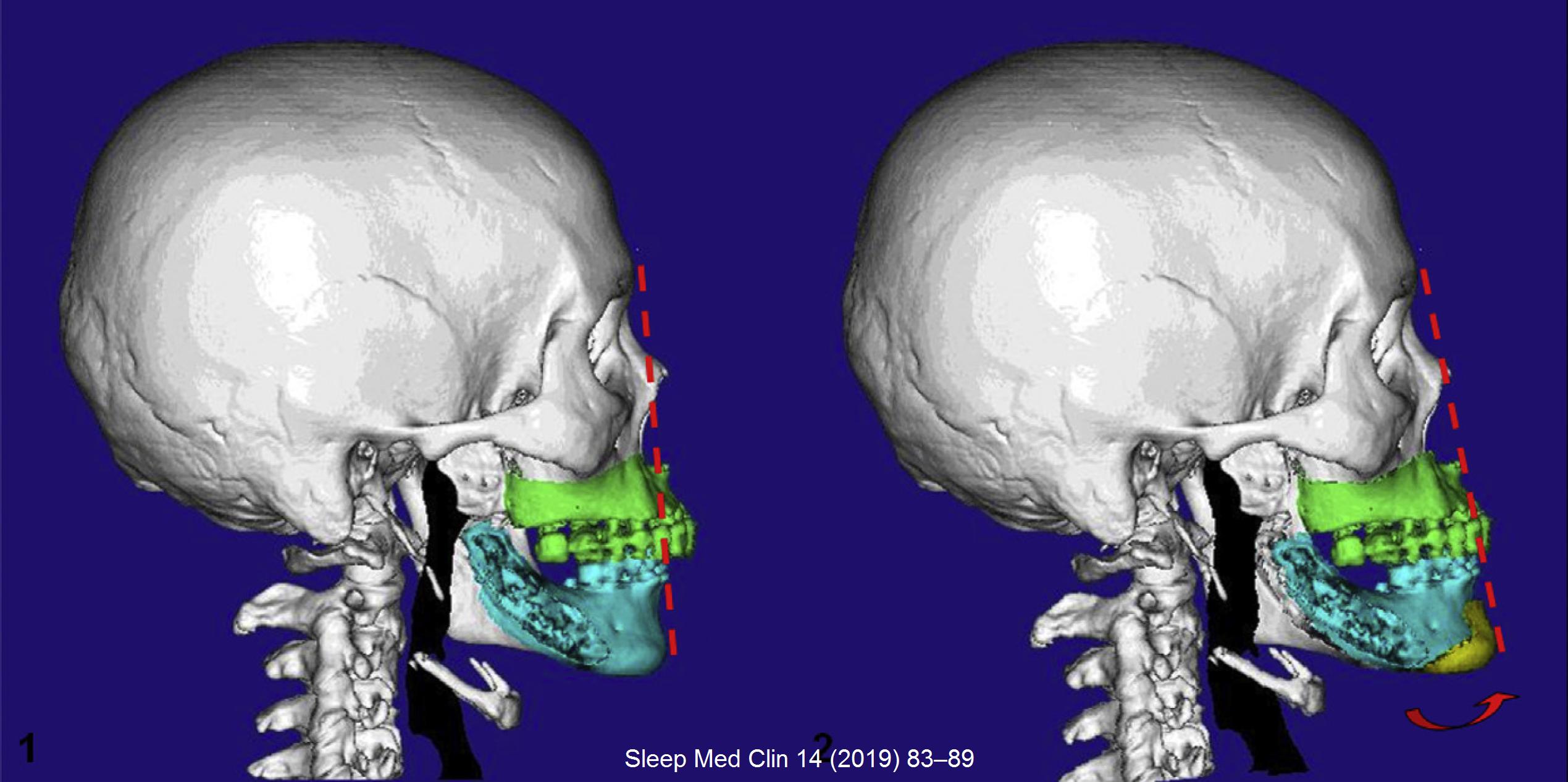 7.手術前後咽呼吸道擴張
