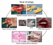 預防術後組織沾黏的新策略