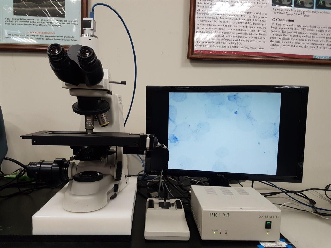 人工智慧結核病鏡檢系統
