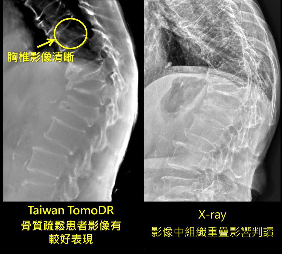 Taiwan TomoDR不受組織重疊影響,可評估不同深度壓迫型骨折嚴重程度。