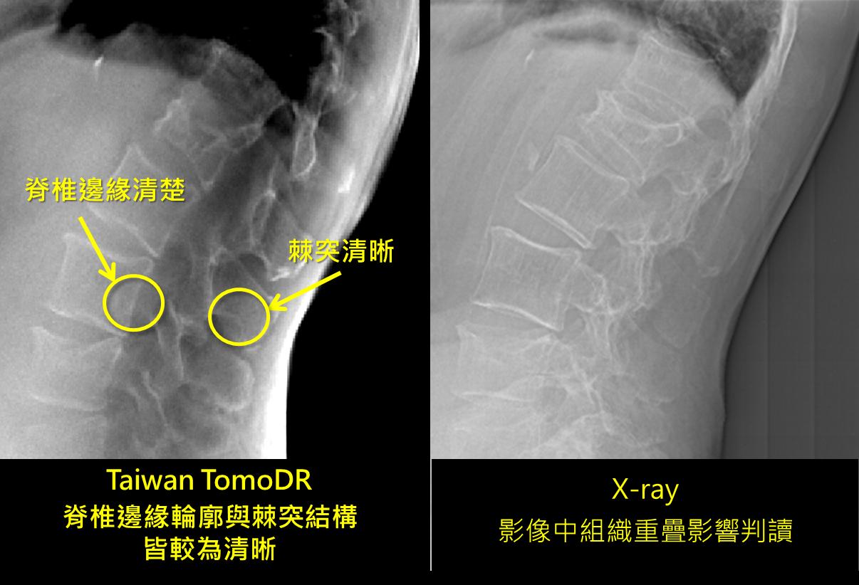 Taiwan TomoDR可分辨不同深度的金屬植入物,看到較微小的骨折斷裂面