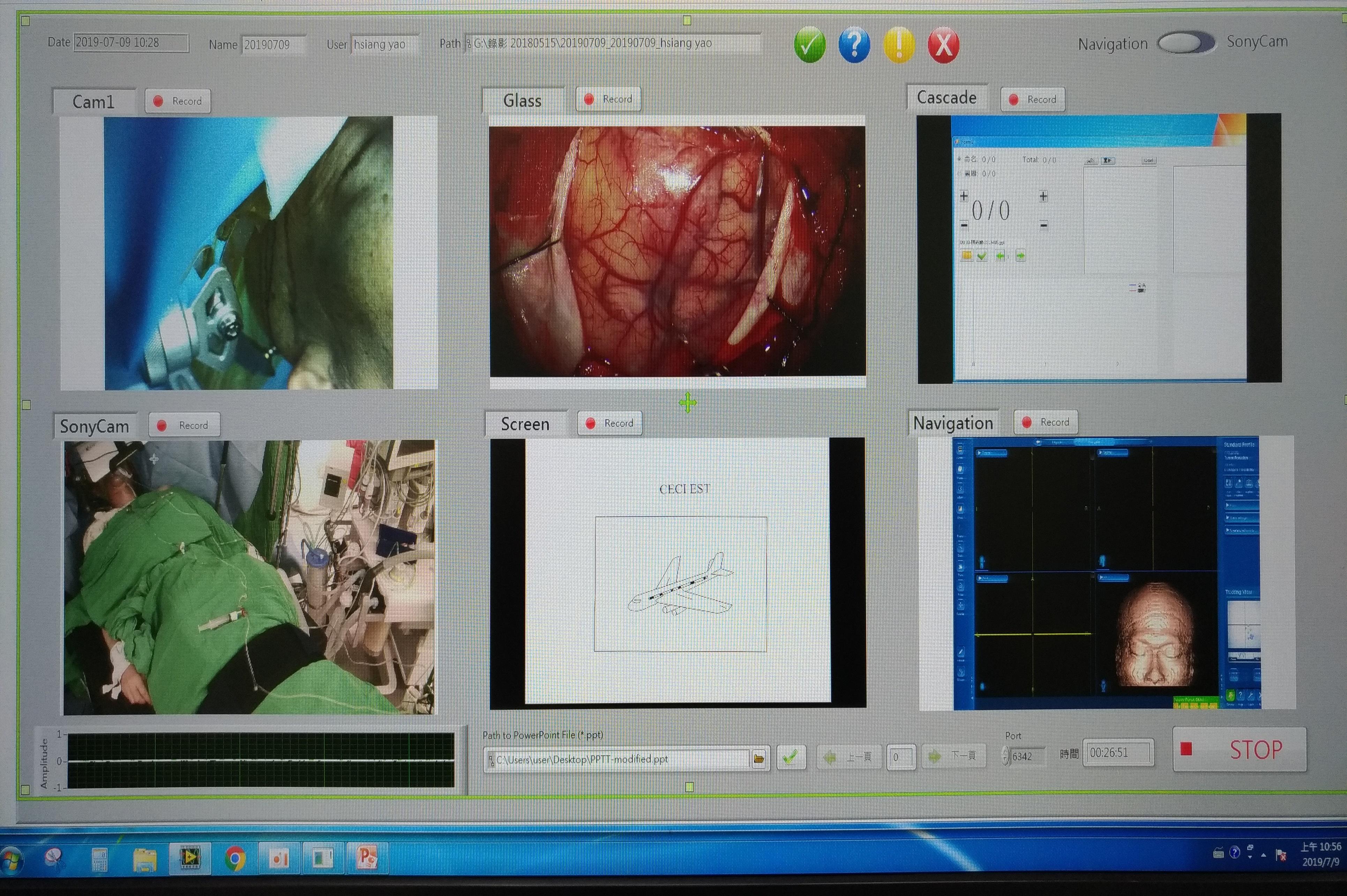 電腦平台利用匯集的資訊,可監控手術情形,適時傳送個別資訊至智慧眼鏡,並在病患有重要變化時利用特殊符號提醒手術醫師。
