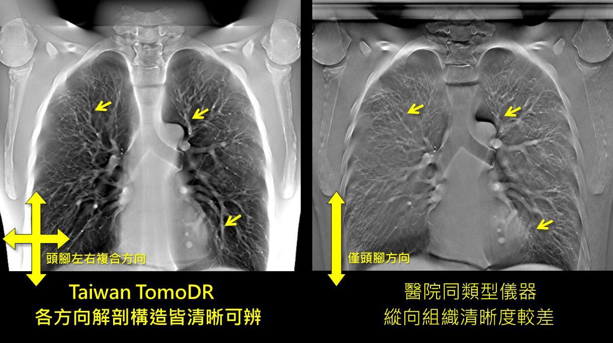 Taiwan TomoDR能實現多方向複合掃描,各方向解剖構造皆清晰可辨,同類型儀器僅能單一方向掃描。