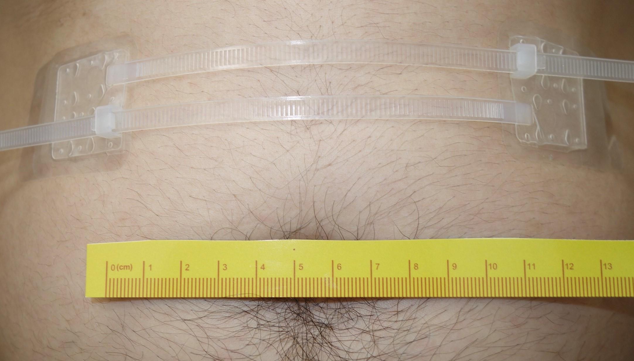模擬手術後利用EZip™協助皮膚傷口(11公分寬)之閉合(含防水敷料)