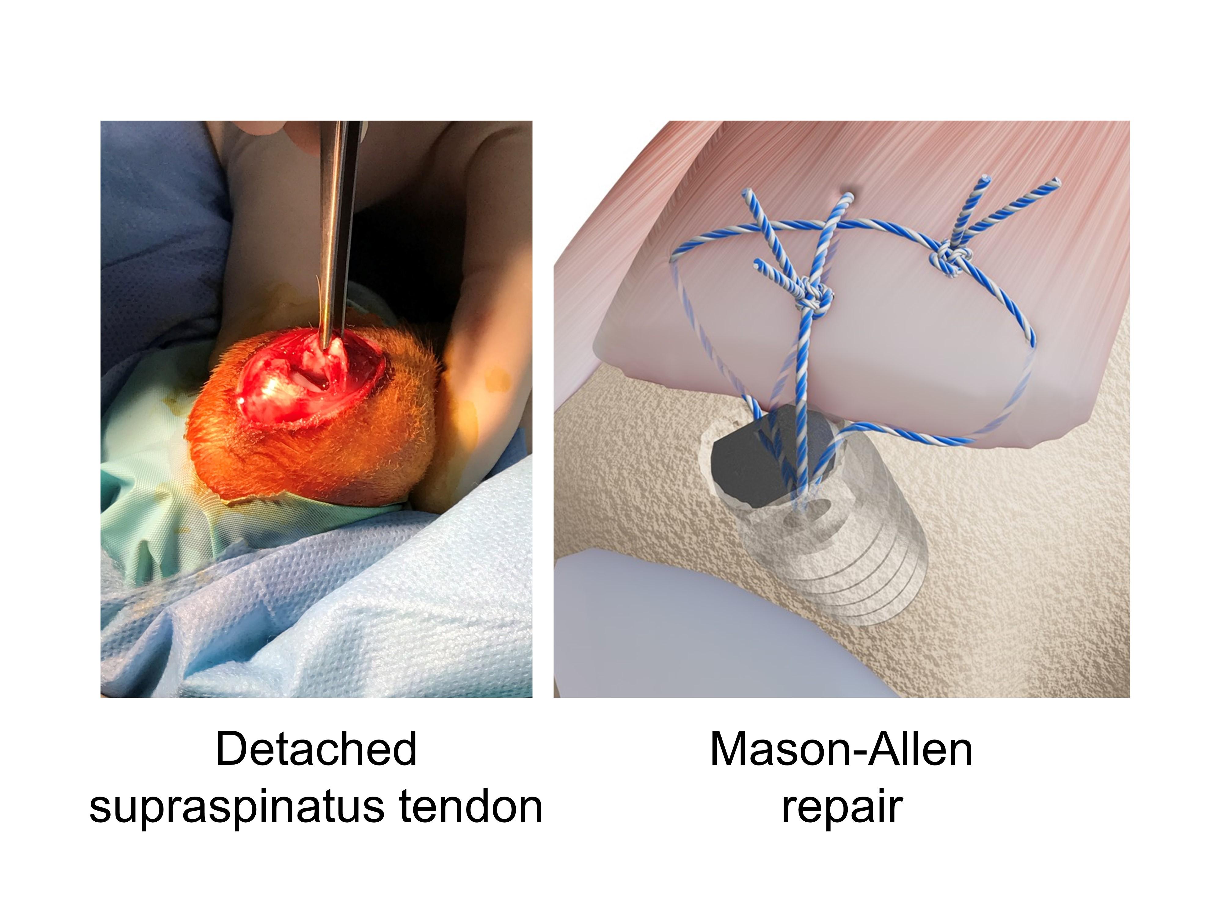 棘上肌全層切斷與Mason-Allen修復示意圖