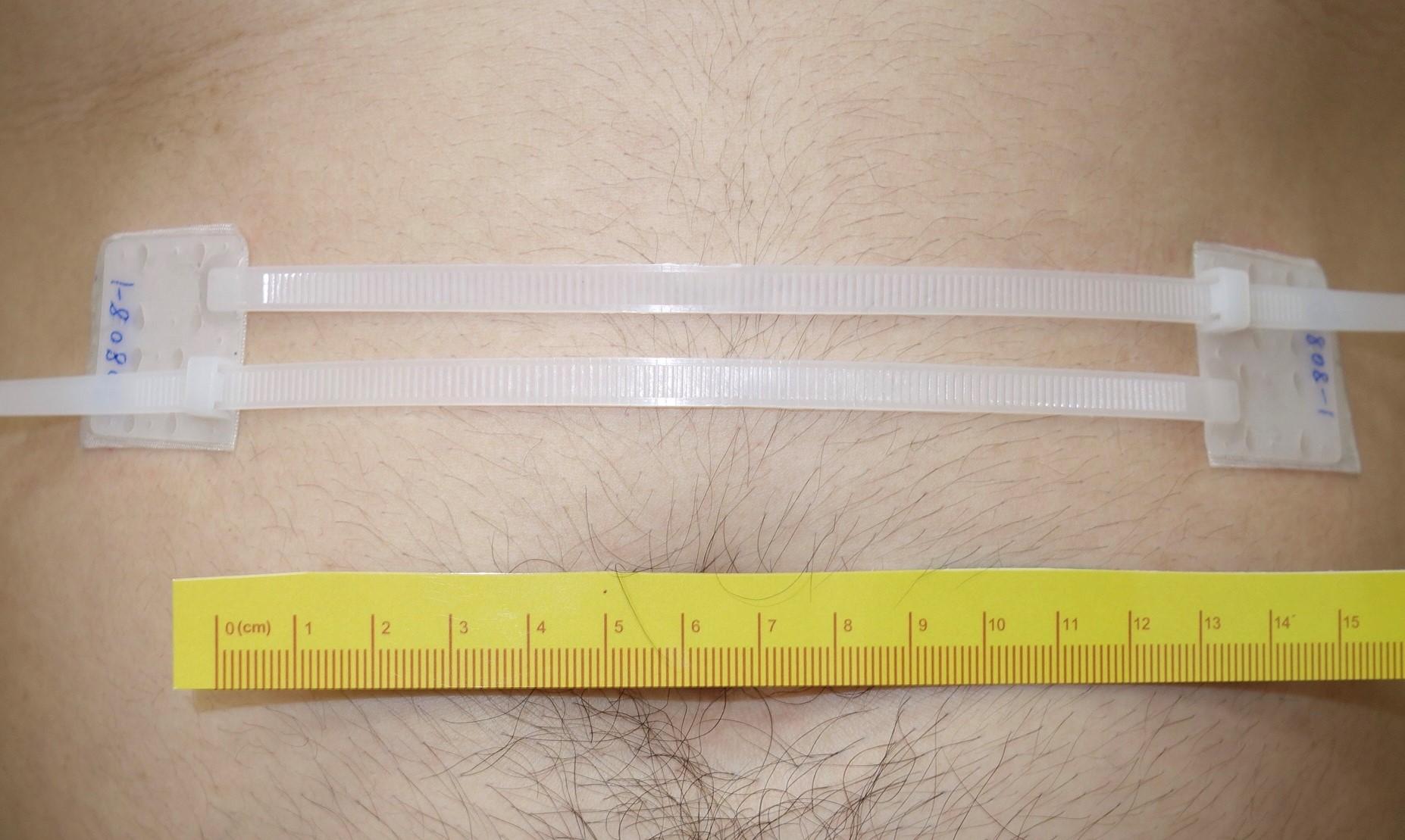 模擬手術後利用EZip™協助皮膚傷口(11公分寬)之閉合(不含防水敷料)
