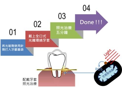 光動力牙周護理儀使用療程
