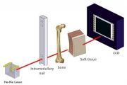 本發明是利用雷射光從體外透過肌肉組織、骨組織並透過貫孔,從人體另一面出光後,使用光線感測器來定位貫孔位置