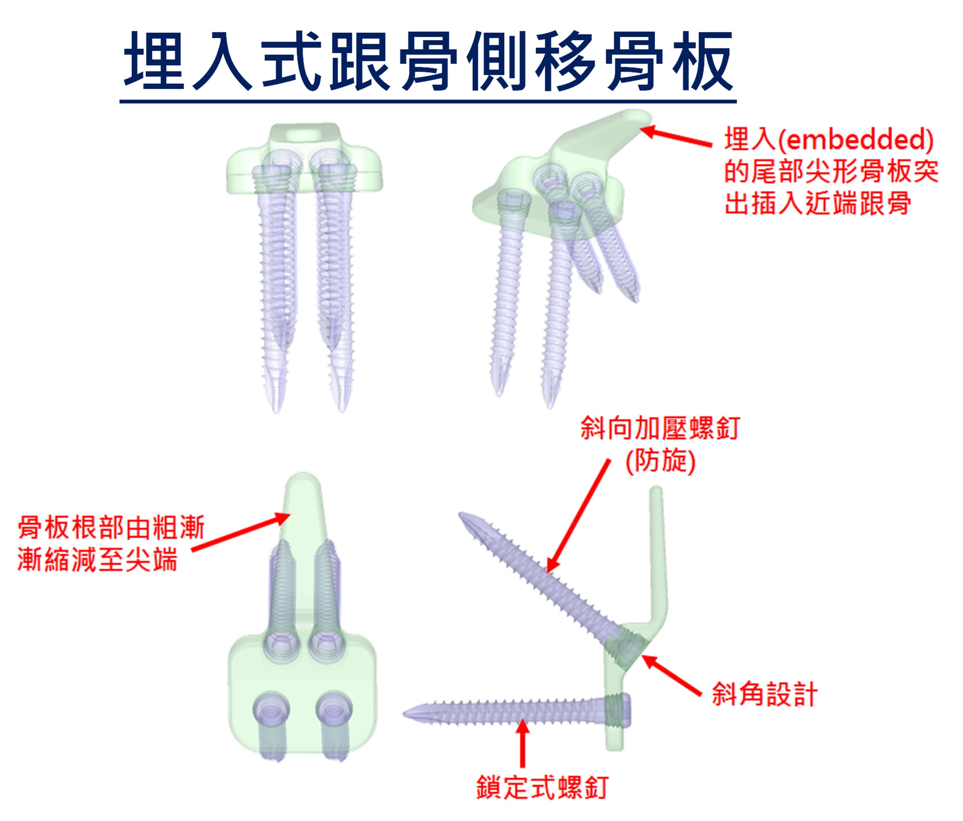 (3)埋入式跟骨側移骨板零件介紹