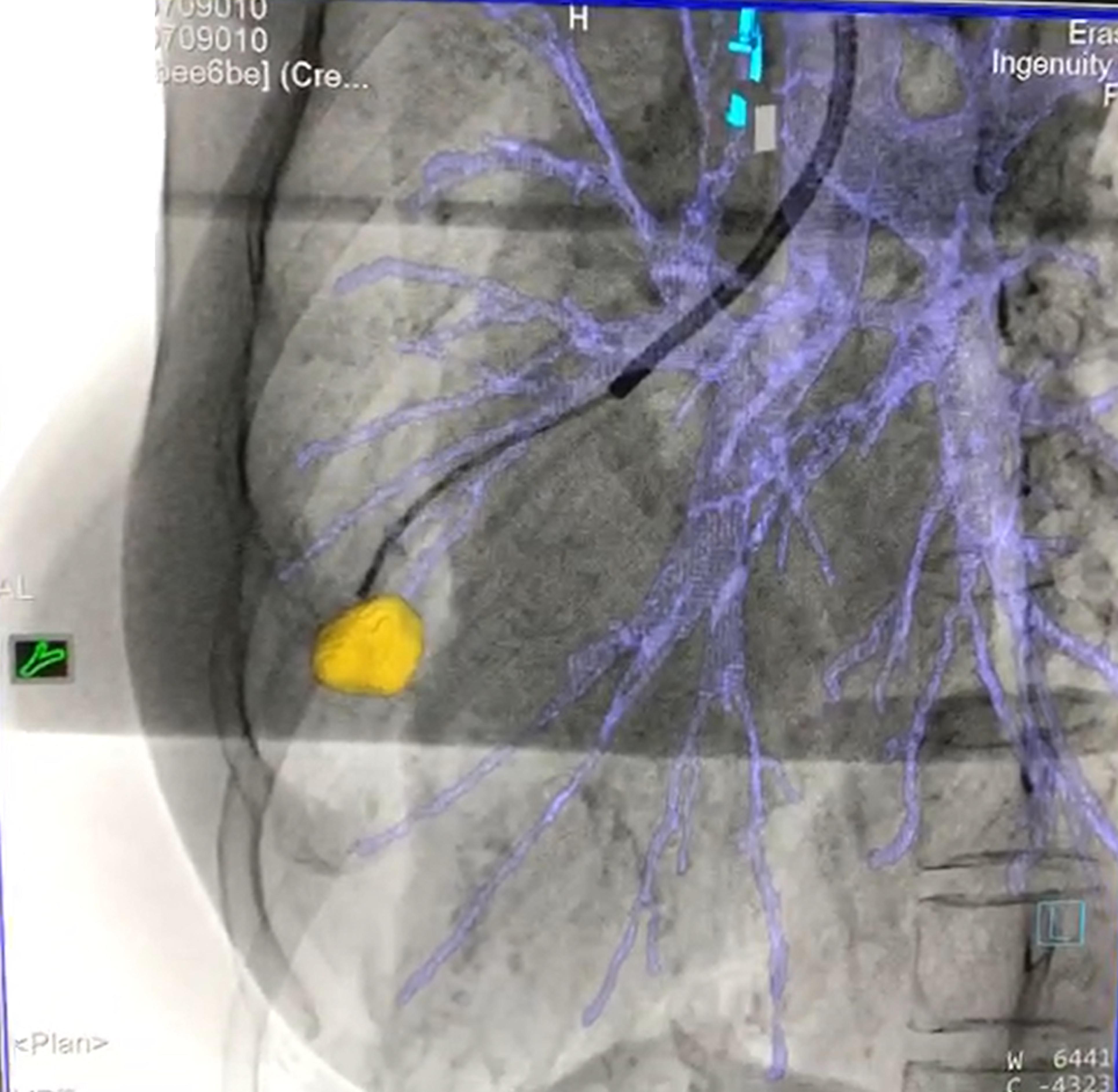 於擴增透視導引下完成肺內導管介入