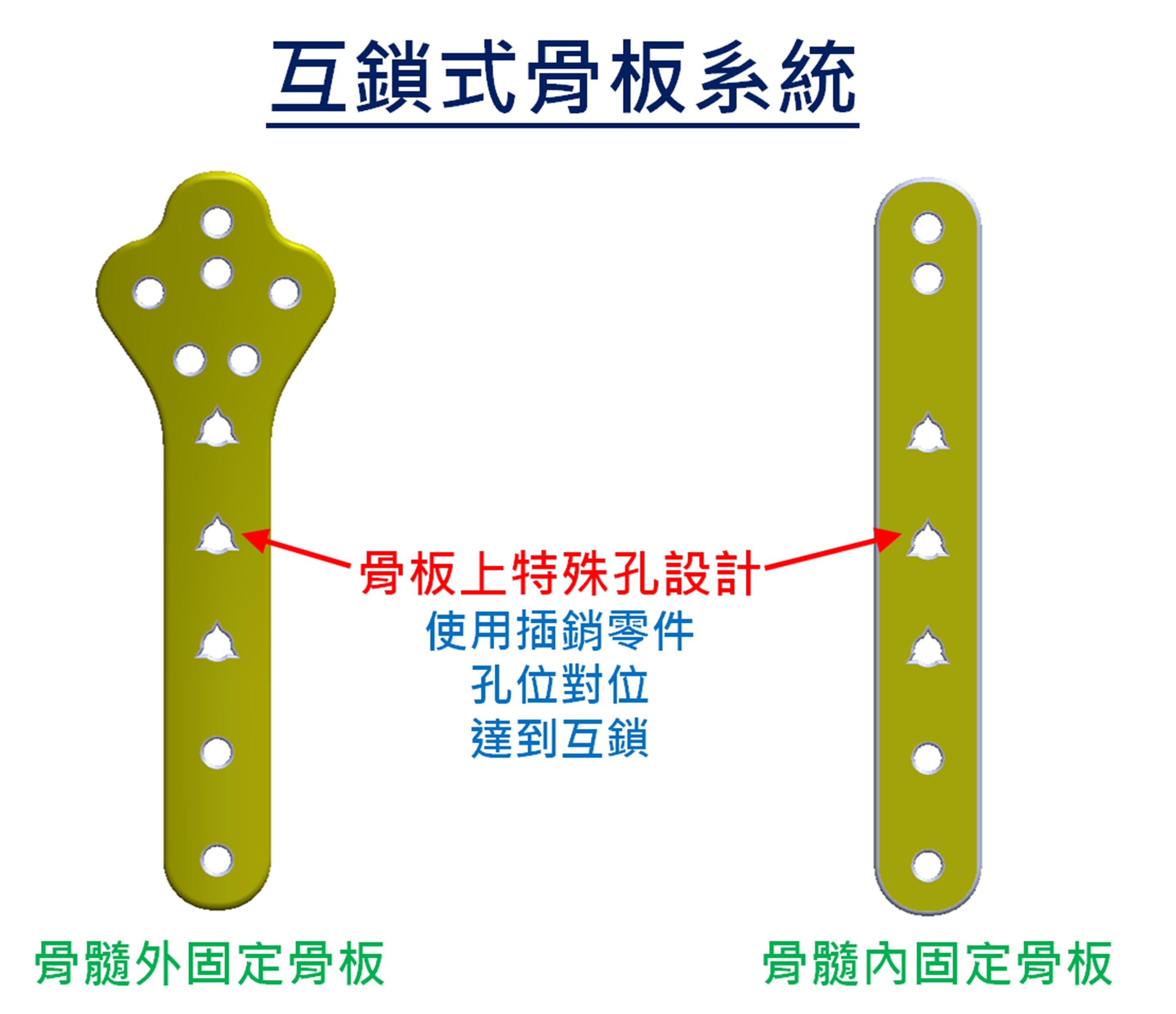 (2)互鎖式骨板結構介紹