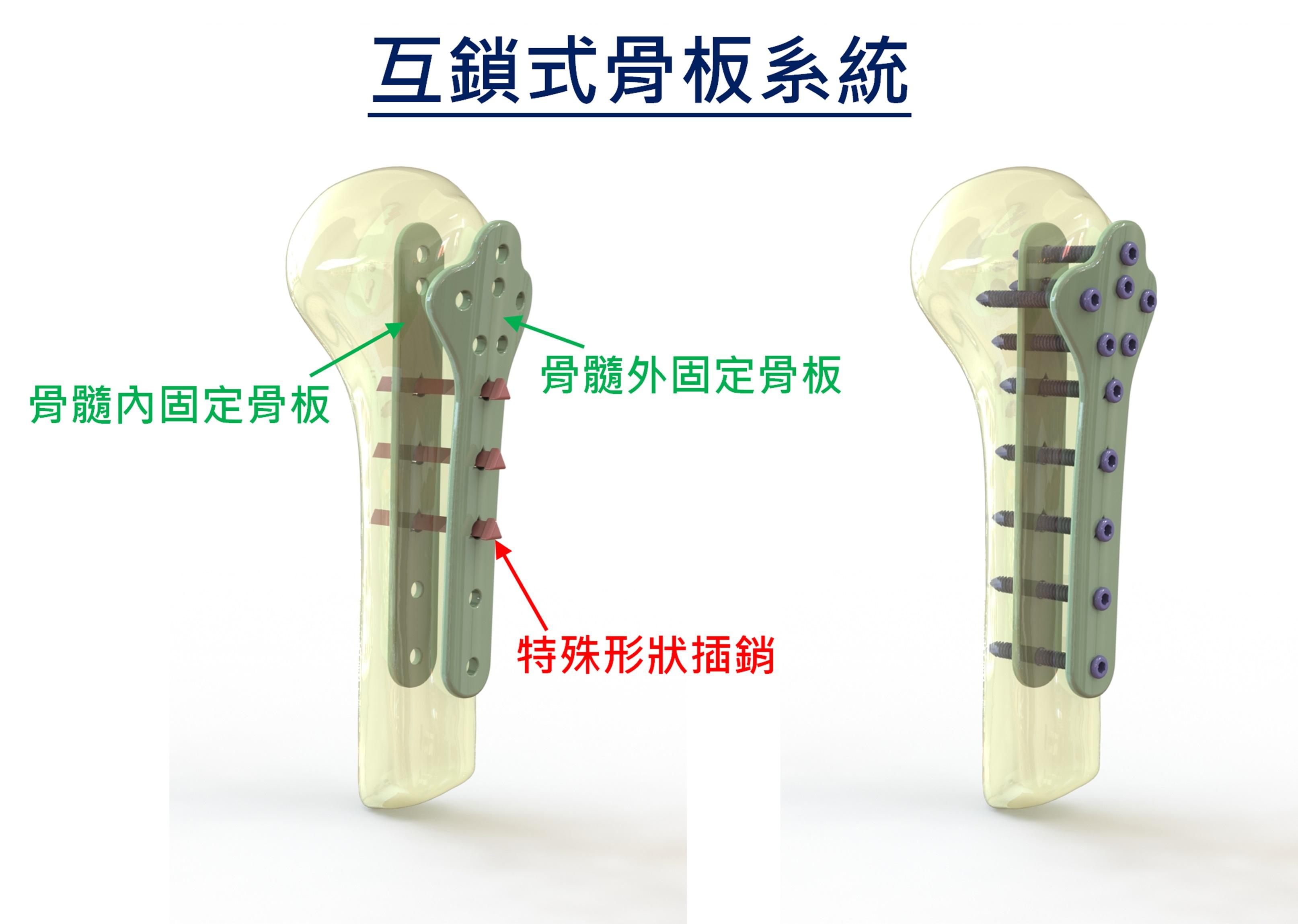 (3)互鎖式骨板植入方式
