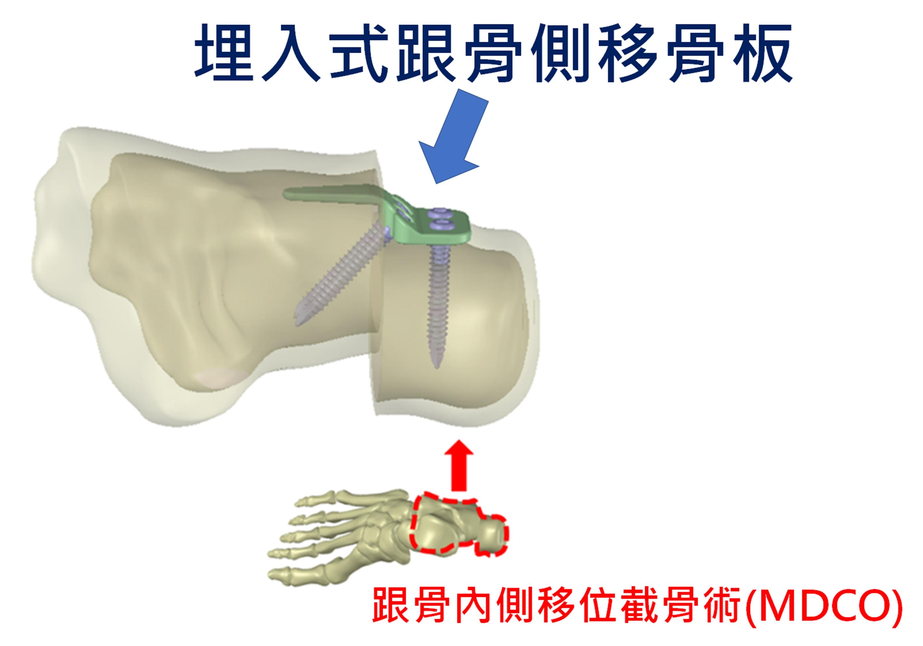 (4)埋入式跟骨側移骨板植入情況
