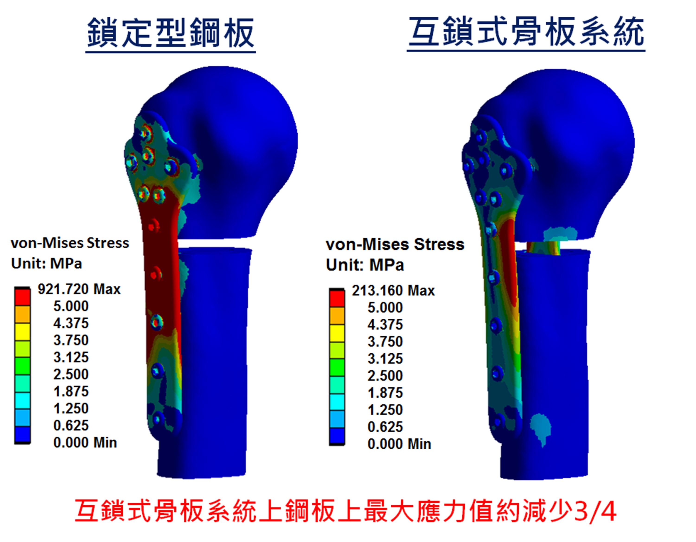 (5)骨板植入應力分析圖
