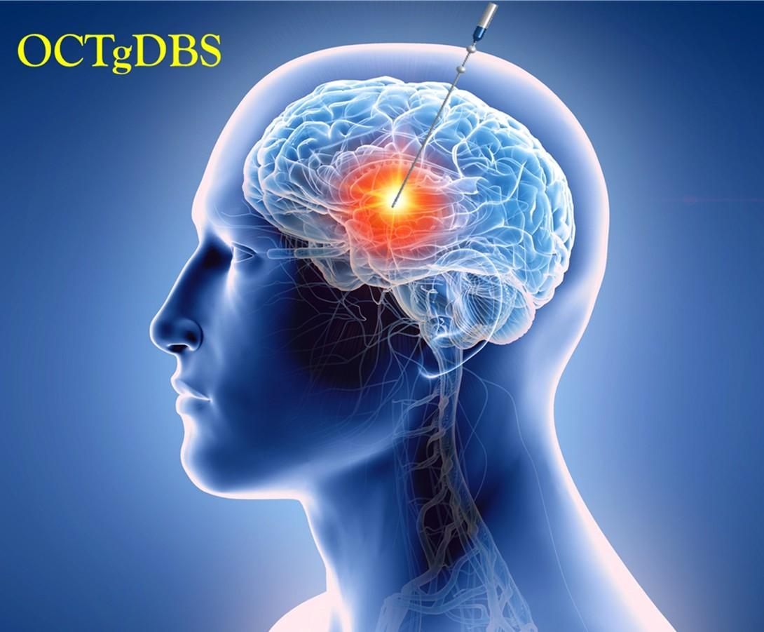 DBS術式之微創式顱內OCT術中導引系統之應用示意(OCTgDBS OCT_guided DBS)
