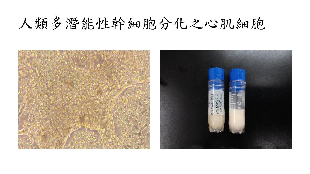多潛能性幹細胞分化之心肌細胞